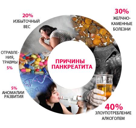 Острый панкреатит и опасные заболевания поджелудочной железы