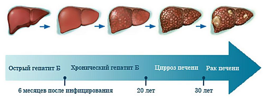 лечение гепатита В в москве